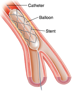 Study Diffuses Hesitation Angioplasty, Bypass For Many Heart Patients